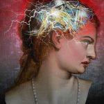 Migraine Disorders