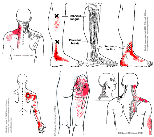 examples-of-trigger-points