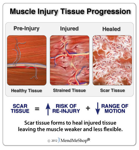muscle-injury-tissue-
