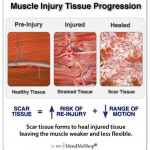 Muscle Adhesions