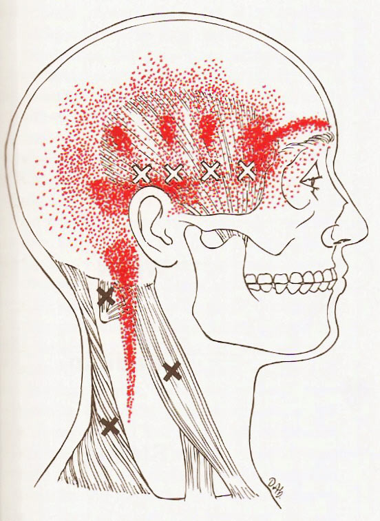 trigger-point-massage-could-help-ease-your-headache-pain_d