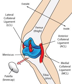 Ligament Sprain