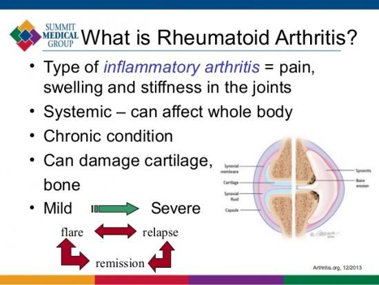 living-with-rheumatoid-arthritis-4-638