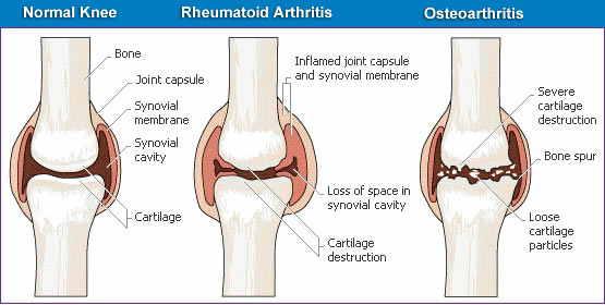 rheumatoid-arthritis-chest-x-ray--pain-and-relief-joint-massachusetts-springfield-24841