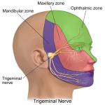 Trigeminal Neuralgia / Fothergill's Disease (FD)